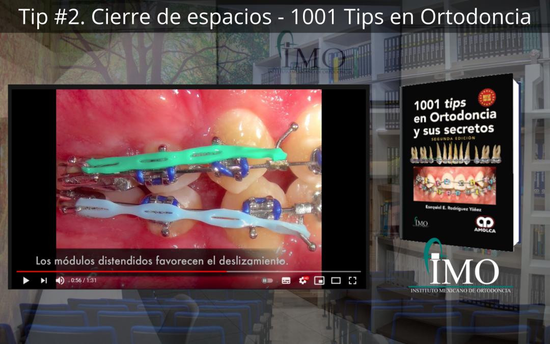 Cierre de espacios – 1001 Tips en Ortodoncia