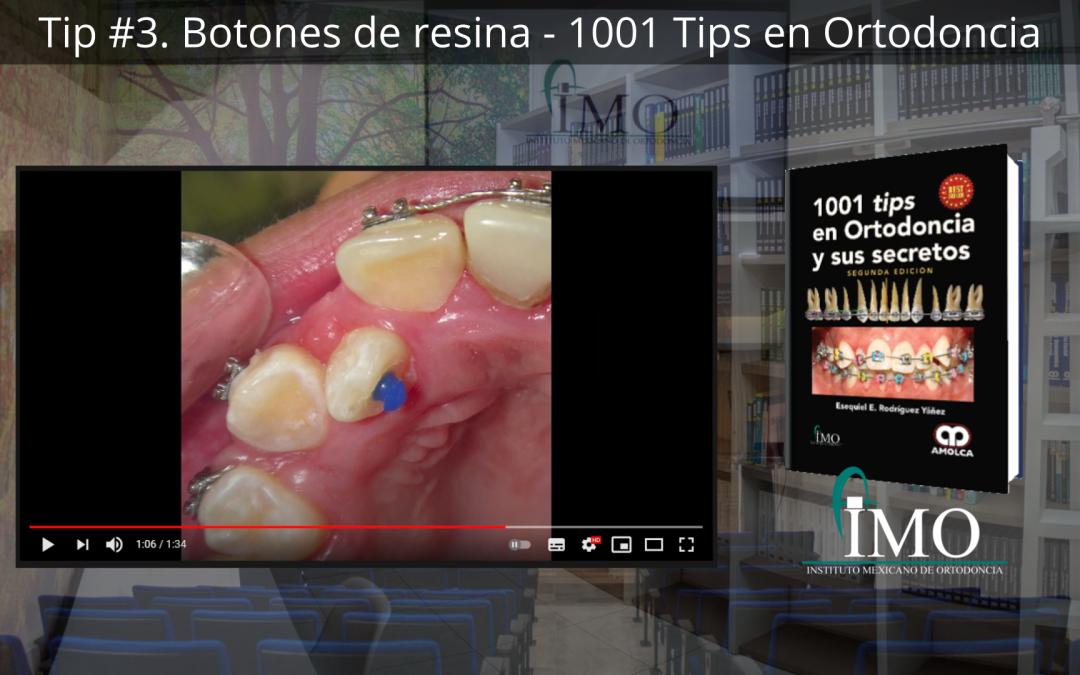 Botones de resina – 1001 Tips en Ortodoncia