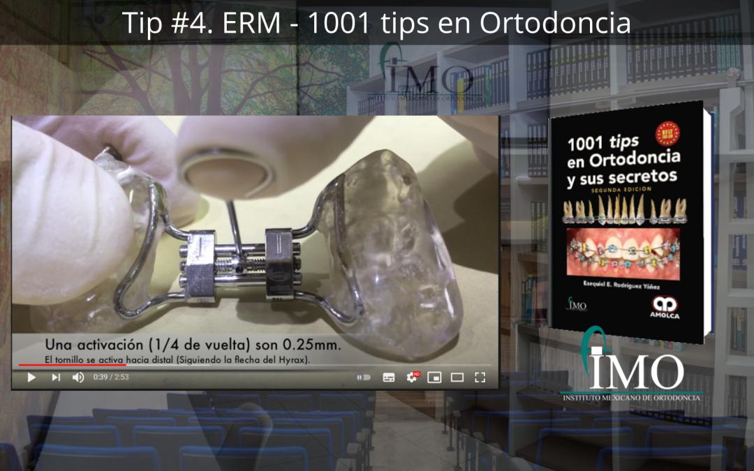 ERM – 1001 tips en Ortodoncia