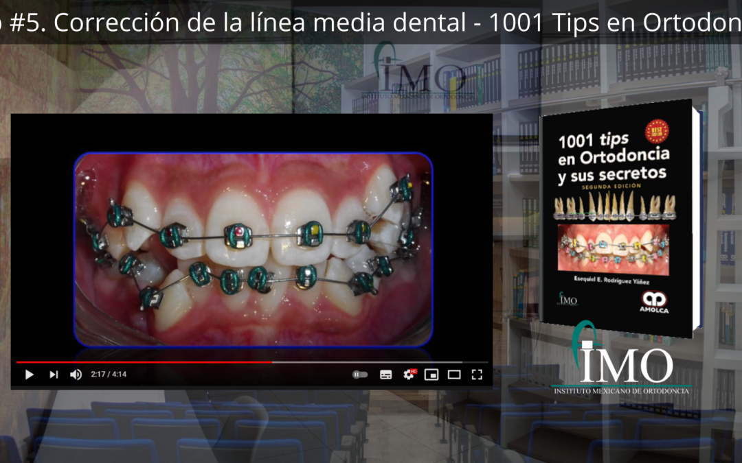 Corrección de la línea media dental – 1001 Tips en Ortodoncia