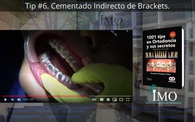 Cementado Indirecto de Brackets. – 1001 Tips en Ortodoncia
