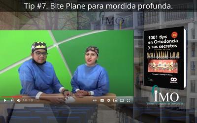 Bite Plane para mordida profunda. – 1001 Tips en Ortodoncia