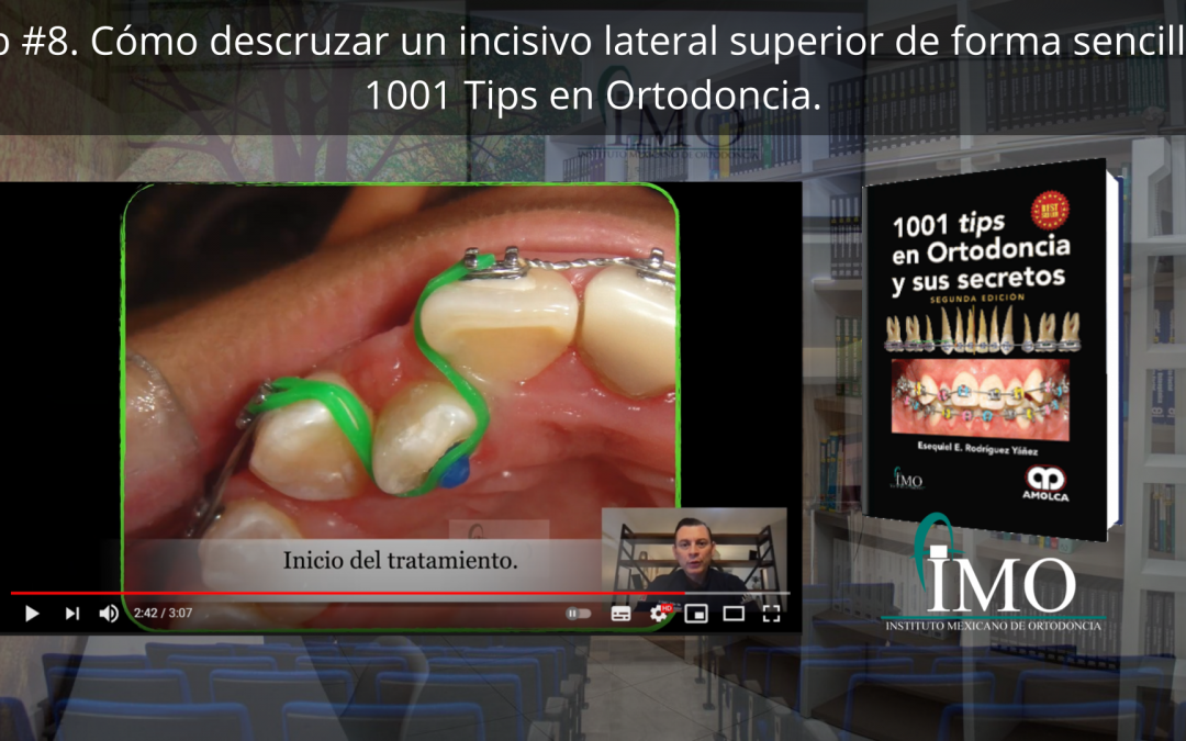 ¿Cómo descruzar un incisivo lateral superior de forma sencilla? – 1001 Tips en Ortodoncia